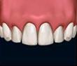 Fluoridgehalt in Zahnpasten