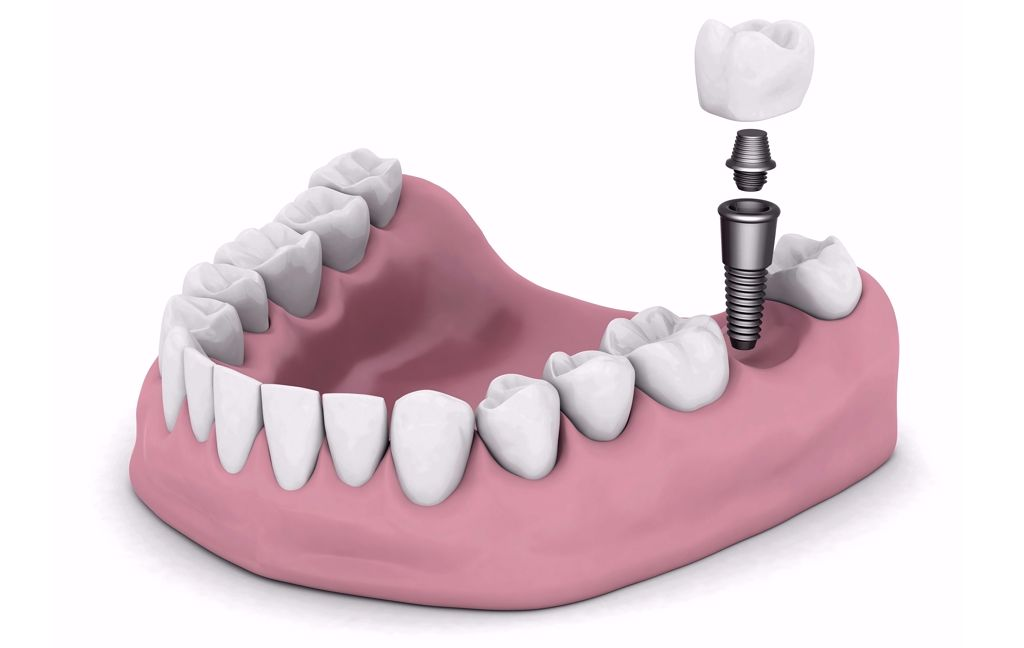 Zahnimplantate 3d-Modell isoliert auf weißem Hintergrund