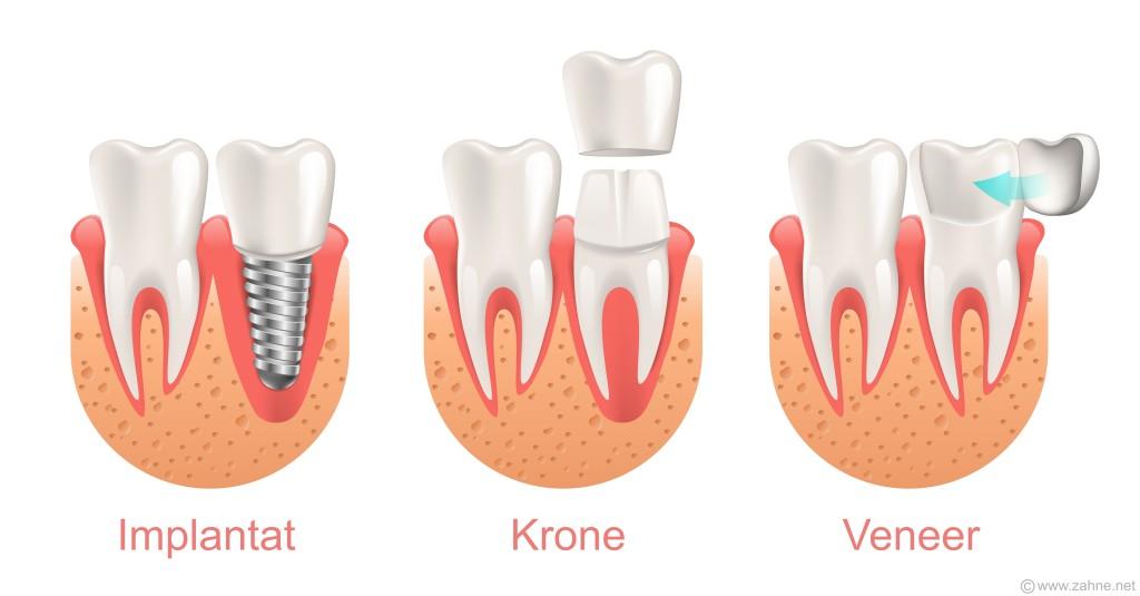 Vergleich Veneer, Krone, Implantat